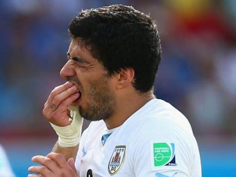 Suarez-teeth
